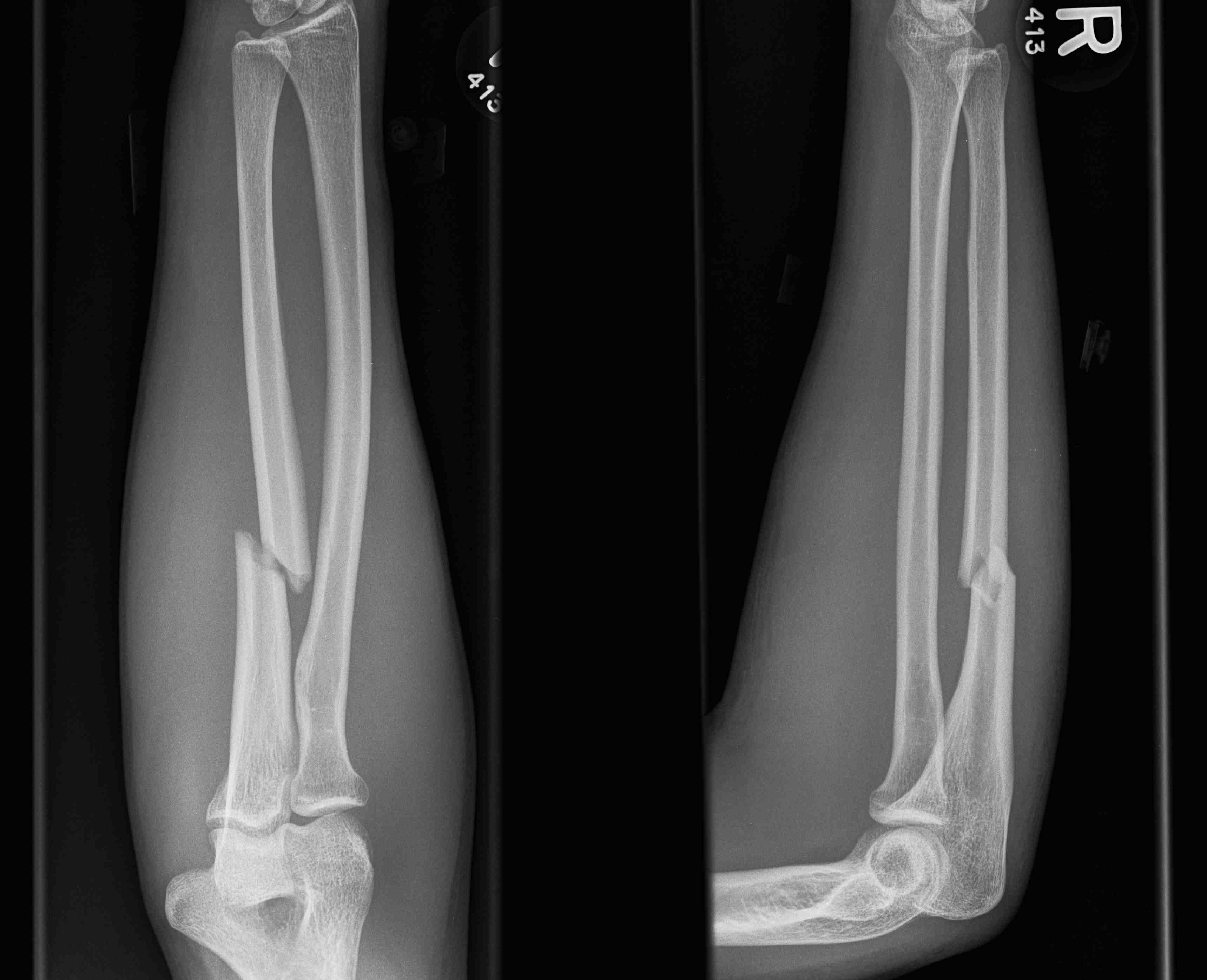 Ulna Fracture Night Stick